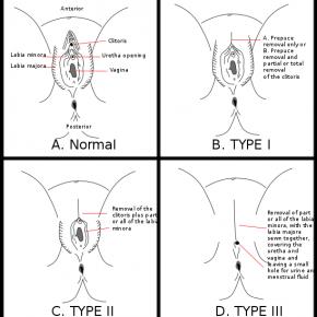 """Tradisjonell kjønnslemlestelse er ofte langt mer alvorlig enn """"intimkirurgi"""", men visse former sammenfaller"""